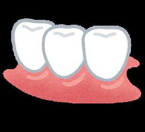 インプラントと入れ歯、ブリッジ。虫歯で歯を抜いた時どれを入れるか!?