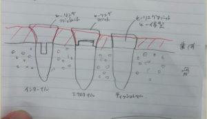 ボーンレベル、ティッシュレベル、インターナル、エクスターナルの違いを図示説明しています!