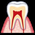 エナメル質が体の中で一番硬い!歯の構造を教えます!!